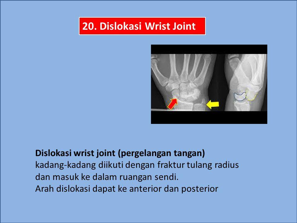 20. Dislokasi Wrist Joint Dislokasi wrist joint (pergelangan tangan)