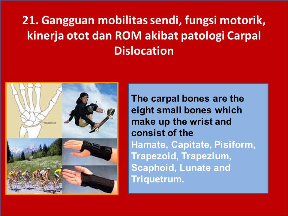 21. Gangguan mobilitas sendi, fungsi motorik, kinerja otot dan ROM akibat patologi Carpal Dislocation