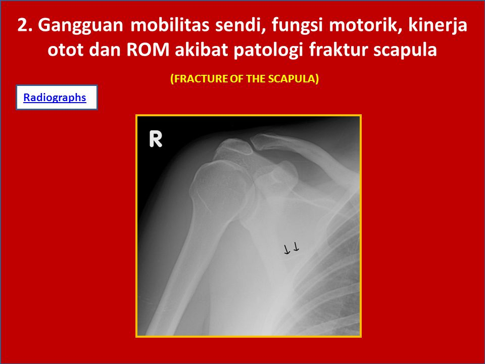 (FRACTURE OF THE SCAPULA)