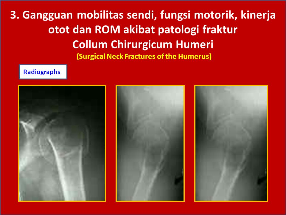 3. Gangguan mobilitas sendi, fungsi motorik, kinerja otot dan ROM akibat patologi fraktur Collum Chirurgicum Humeri (Surgical Neck Fractures of the Humerus)