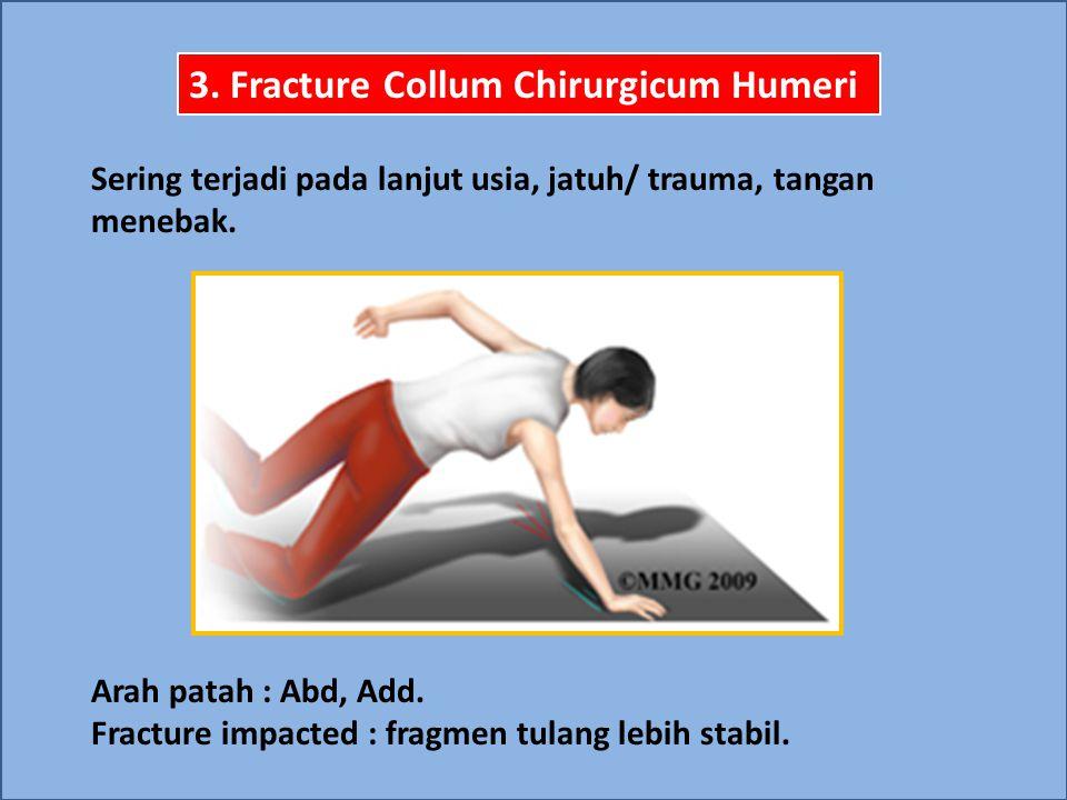 3. Fracture Collum Chirurgicum Humeri