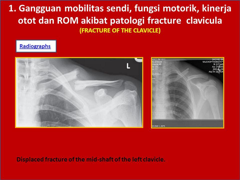 1. Gangguan mobilitas sendi, fungsi motorik, kinerja otot dan ROM akibat patologi fracture clavicula (FRACTURE OF THE CLAVICLE)