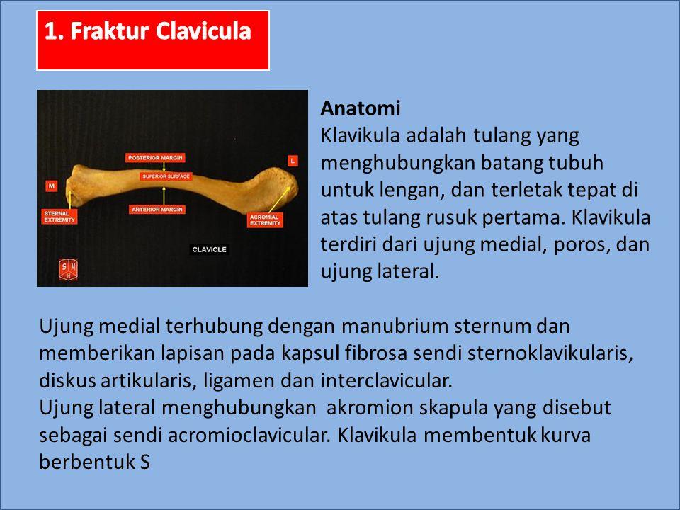 1. Fraktur Clavicula