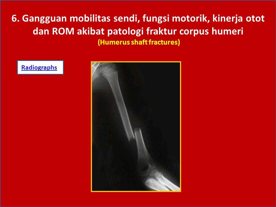 6. Gangguan mobilitas sendi, fungsi motorik, kinerja otot dan ROM akibat patologi fraktur corpus humeri (Humerus shaft fractures)