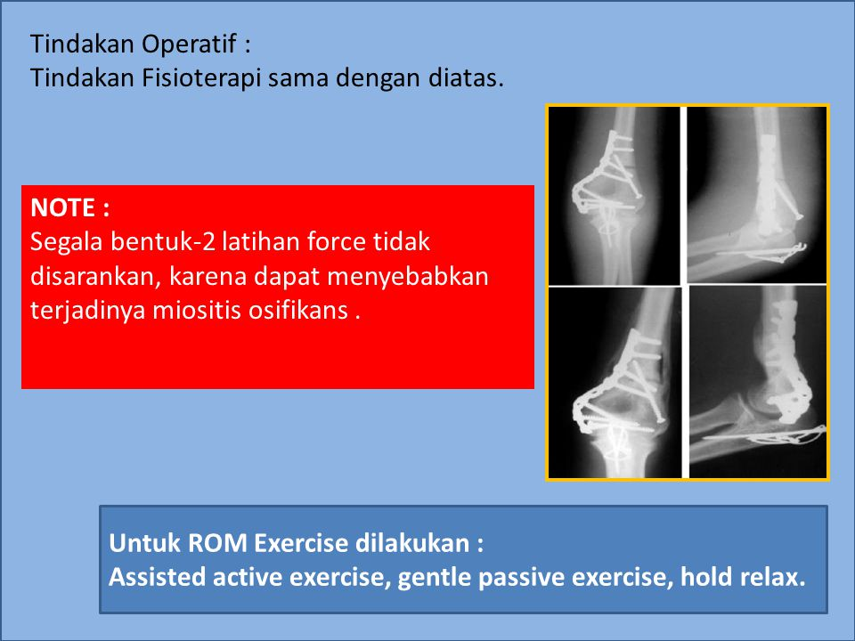 Tindakan Operatif : Tindakan Fisioterapi sama dengan diatas. NOTE :