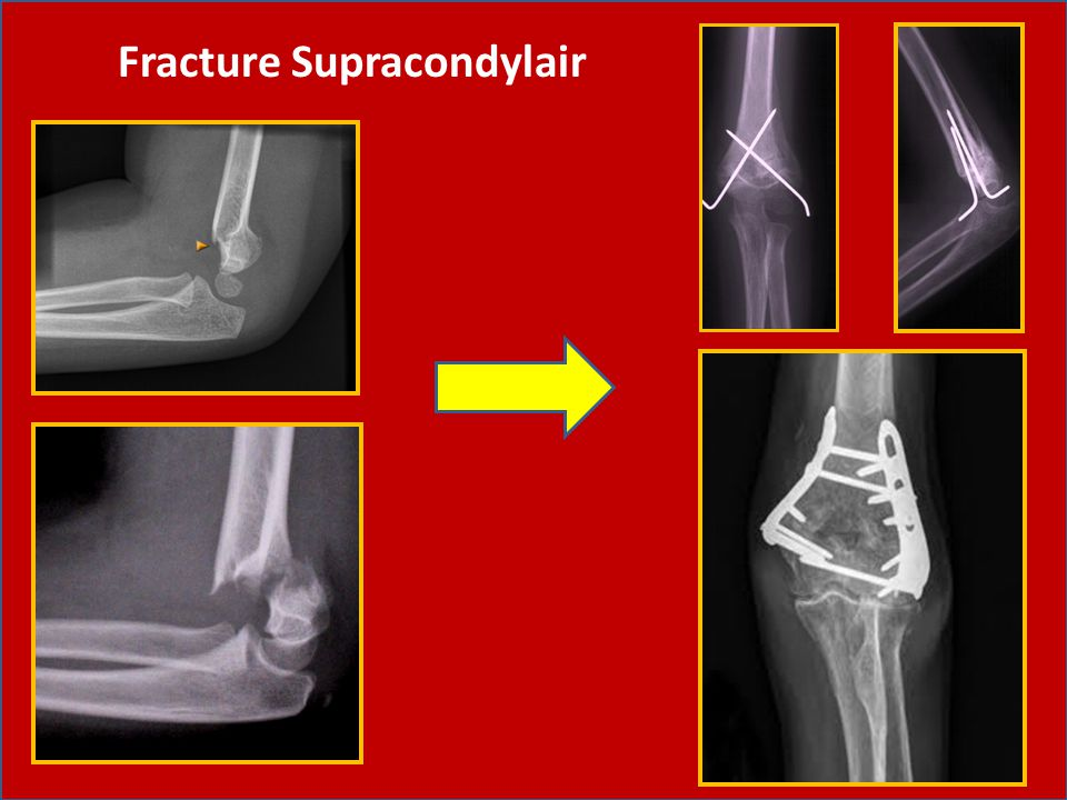 Fracture Supracondylair