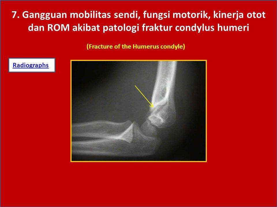 7. Gangguan mobilitas sendi, fungsi motorik, kinerja otot dan ROM akibat patologi fraktur condylus humeri