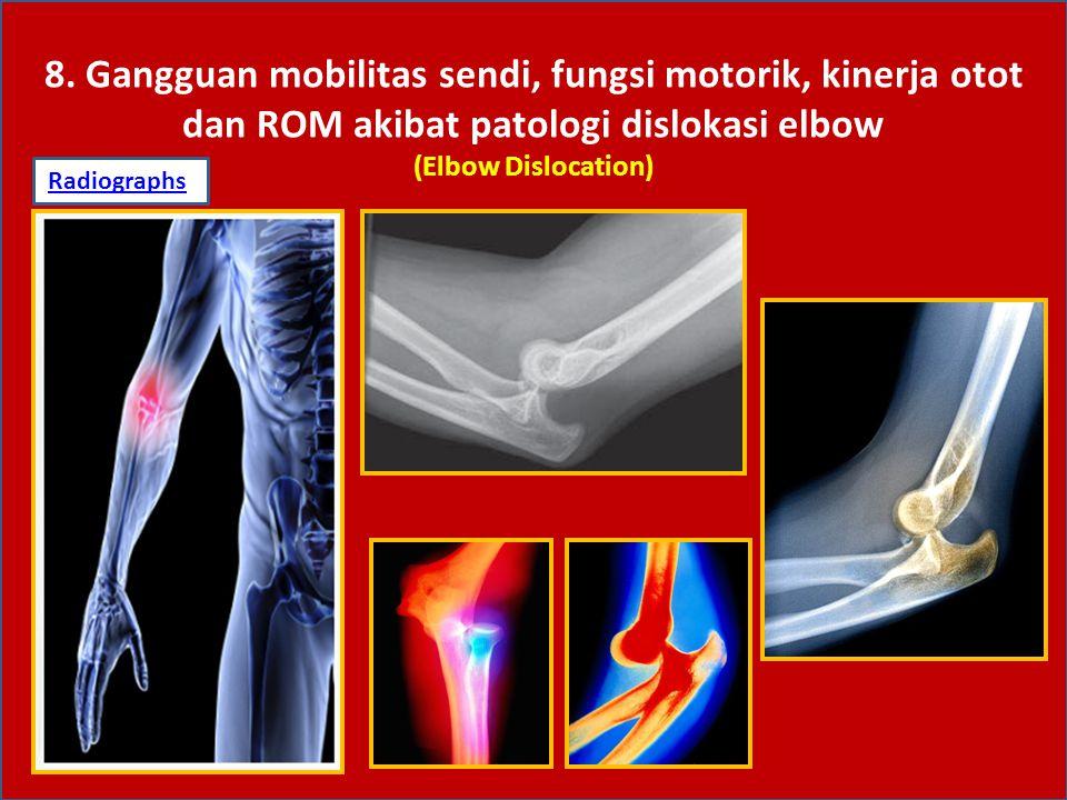 8. Gangguan mobilitas sendi, fungsi motorik, kinerja otot dan ROM akibat patologi dislokasi elbow (Elbow Dislocation)