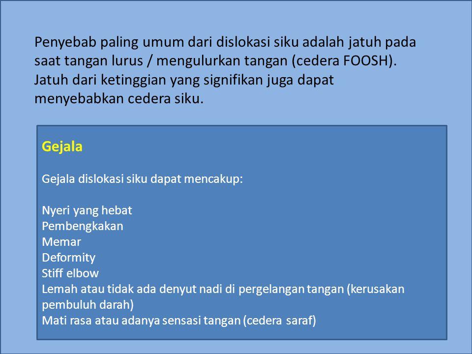 Penyebab paling umum dari dislokasi siku adalah jatuh pada saat tangan lurus / mengulurkan tangan (cedera FOOSH).