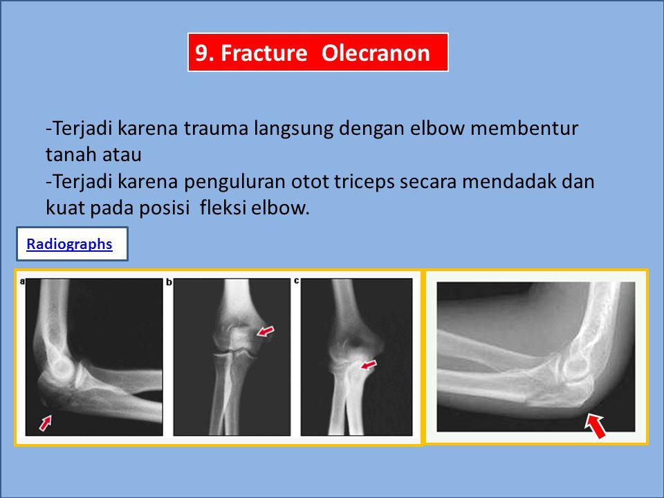 9. Fracture Olecranon -Terjadi karena trauma langsung dengan elbow membentur tanah atau.