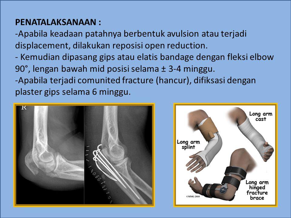 PENATALAKSANAAN : Apabila keadaan patahnya berbentuk avulsion atau terjadi displacement, dilakukan reposisi open reduction.