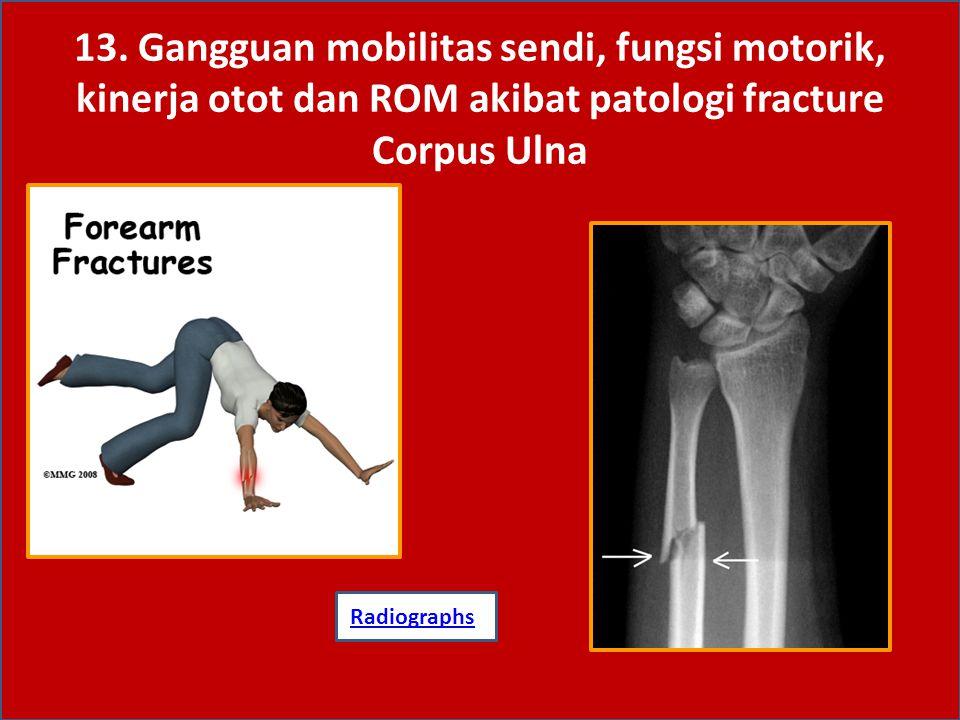 13. Gangguan mobilitas sendi, fungsi motorik, kinerja otot dan ROM akibat patologi fracture Corpus Ulna
