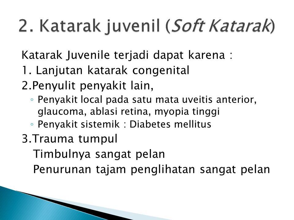 2. Katarak juvenil (Soft Katarak)