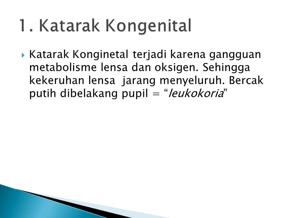 1. Katarak Kongenital