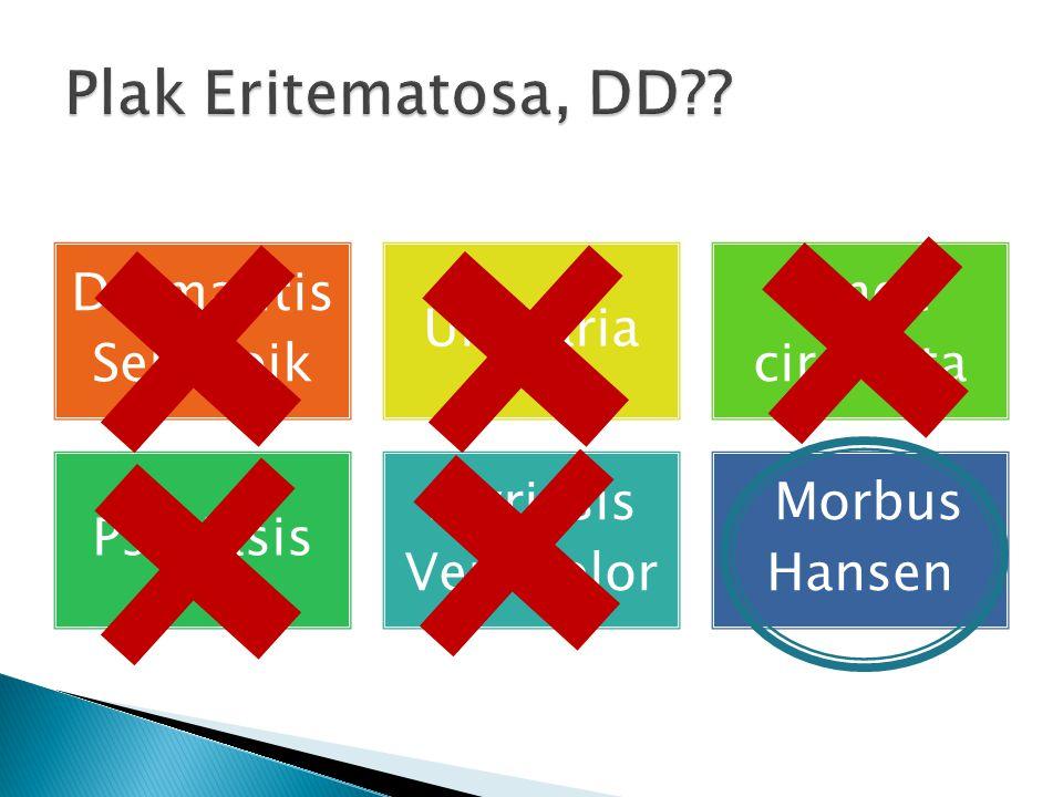 Plak Eritematosa, DD Dermatitis Seboroik Urtikaria Tinea circinata