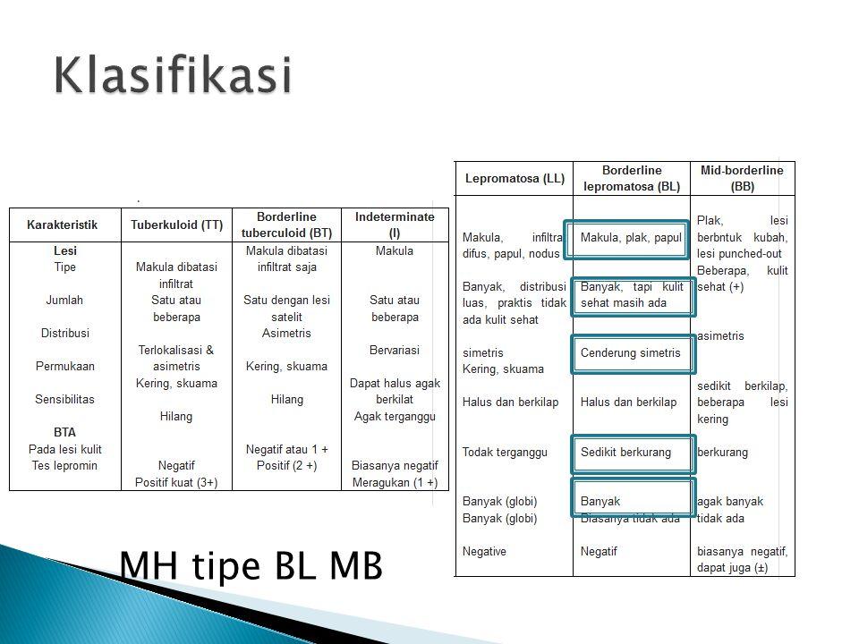 Klasifikasi MH tipe BL MB