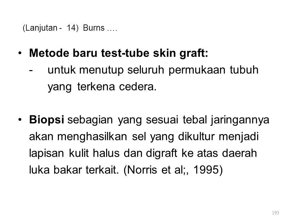 Metode baru test-tube skin graft: