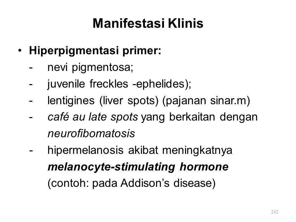 Manifestasi Klinis Hiperpigmentasi primer: - nevi pigmentosa;