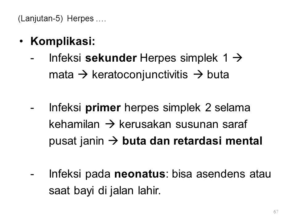 - Infeksi sekunder Herpes simplek 1 