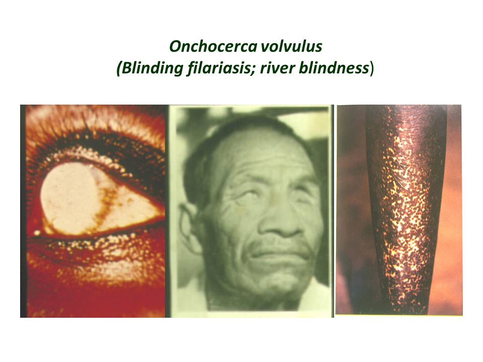 Onchocerca volvulus (Blinding filariasis; river blindness)