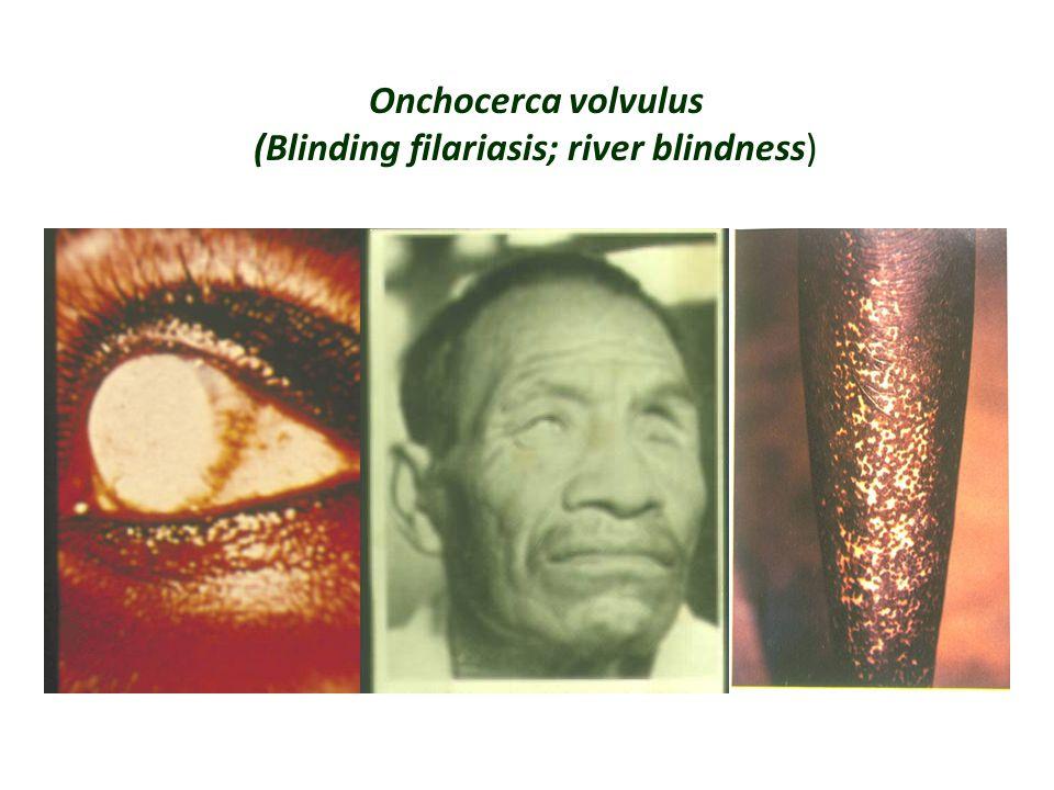 Onchocerca volvulus (Blinding filariasis; river blindness)