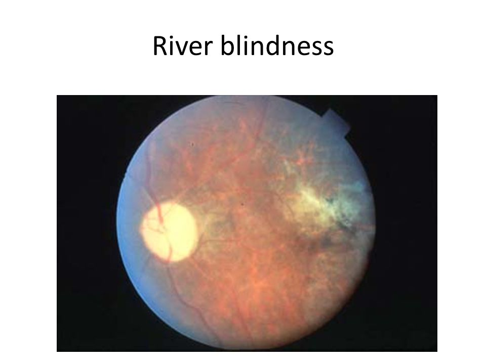 River blindness