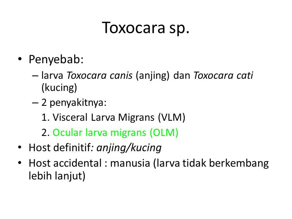 Toxocara sp. Penyebab: Host definitif: anjing/kucing