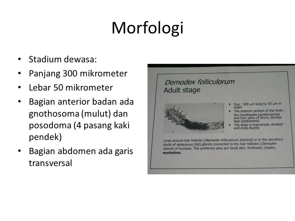 Morfologi Stadium dewasa: Panjang 300 mikrometer Lebar 50 mikrometer