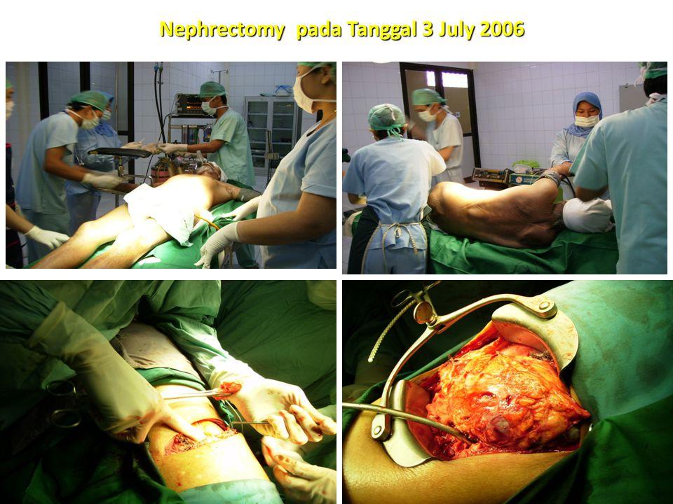 Nephrectomy pada Tanggal 3 July 2006