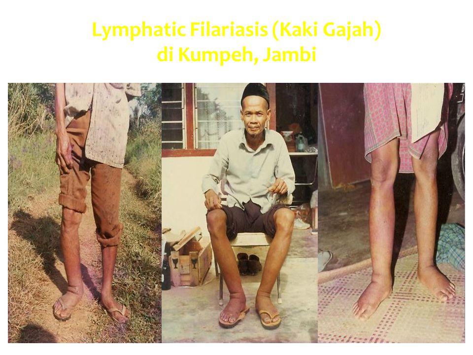Lymphatic Filariasis (Kaki Gajah) di Kumpeh, Jambi