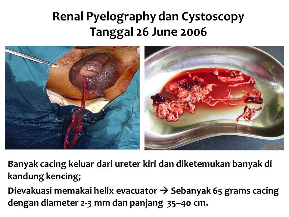 Renal Pyelography dan Cystoscopy Tanggal 26 June 2006