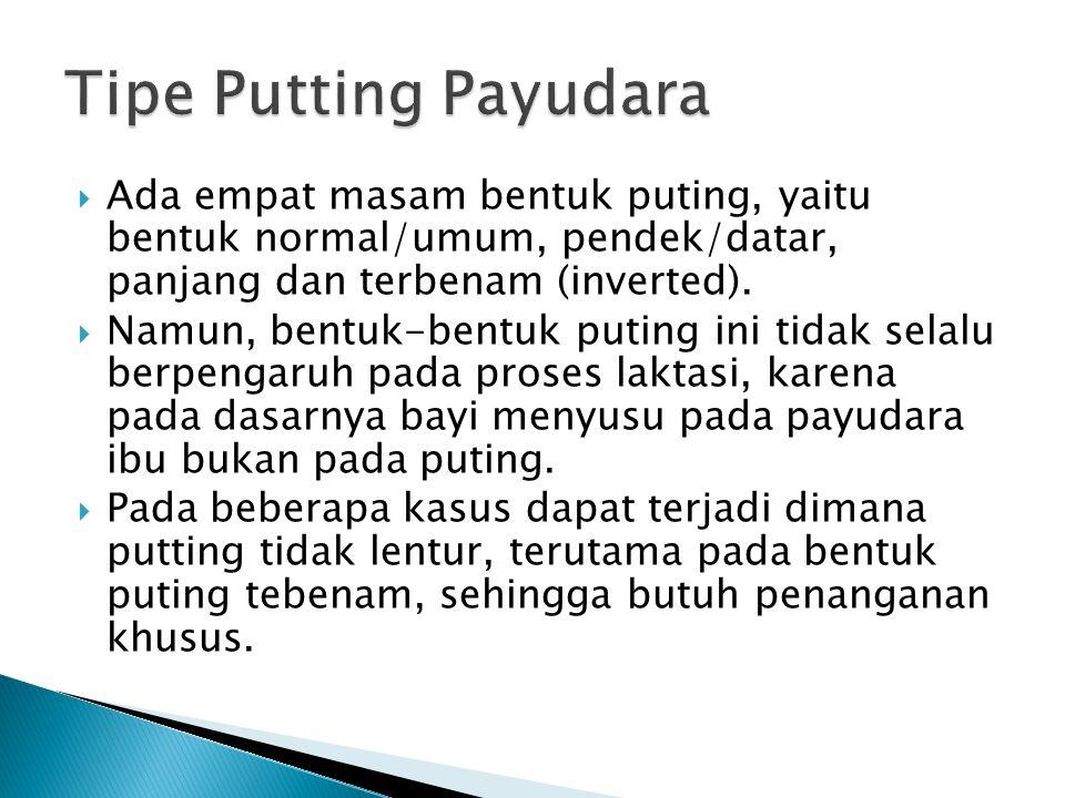 Tipe Putting Payudara Ada empat masam bentuk puting, yaitu bentuk normal/umum, pendek/datar, panjang dan terbenam (inverted).