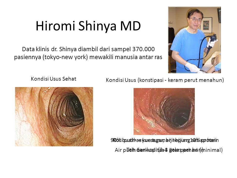 Hiromi Shinya MD Data klinis dr. Shinya diambil dari sampel 370.000 pasiennya (tokyo-new york) mewakili manusia antar ras.
