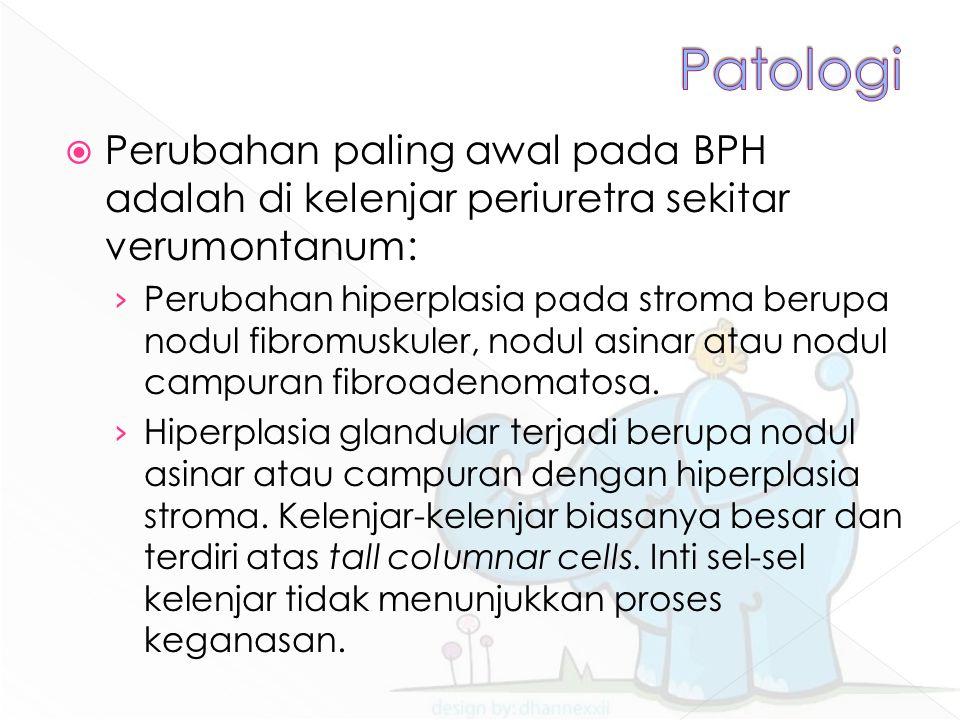 Patologi Perubahan paling awal pada BPH adalah di kelenjar periuretra sekitar verumontanum: