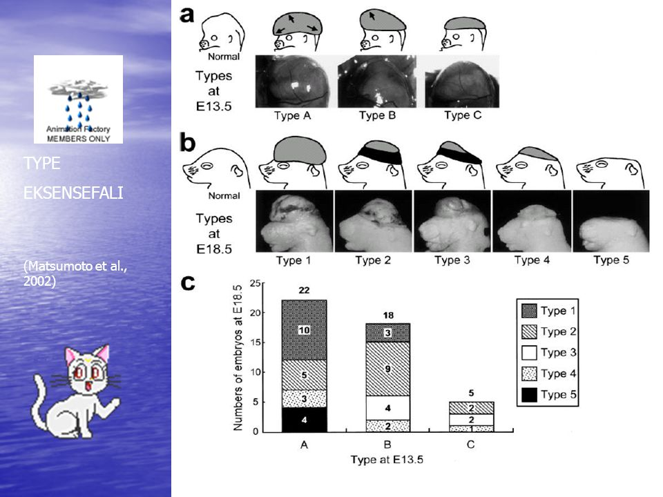 TYPE EKSENSEFALI (Matsumoto et al., 2002)