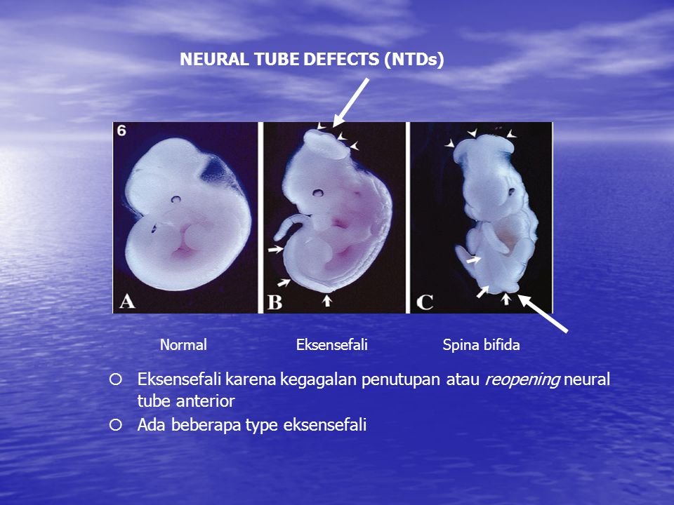 NEURAL TUBE DEFECTS (NTDs)