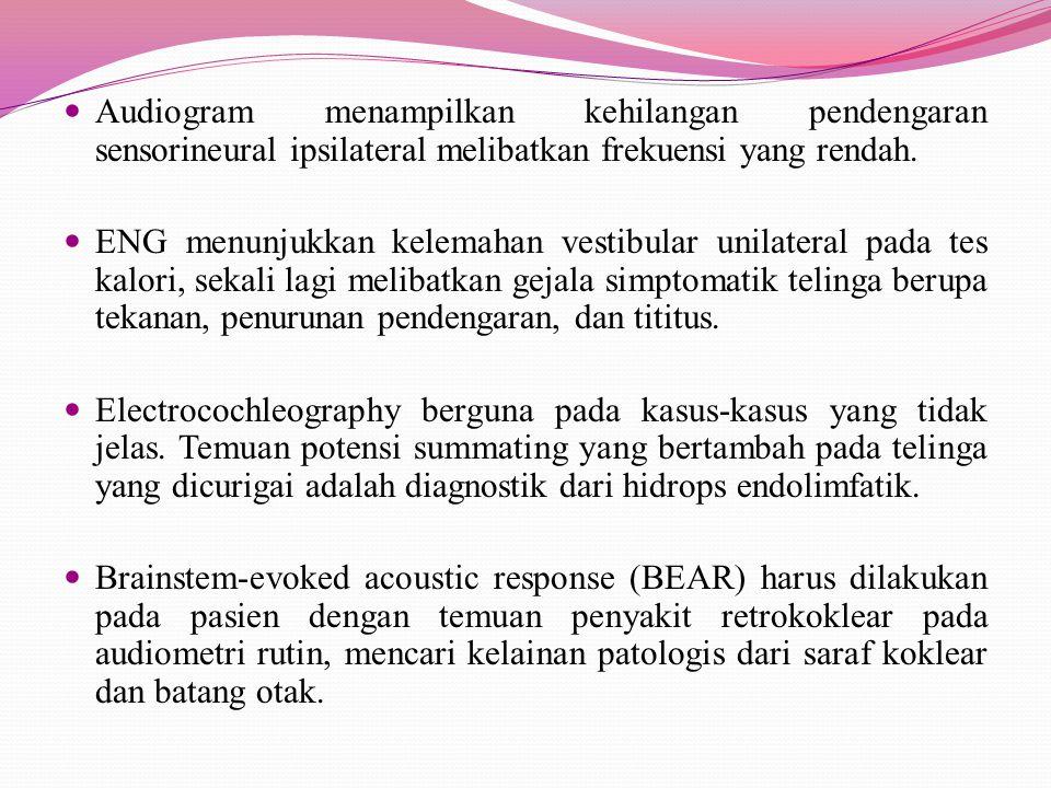 Audiogram menampilkan kehilangan pendengaran sensorineural ipsilateral melibatkan frekuensi yang rendah.