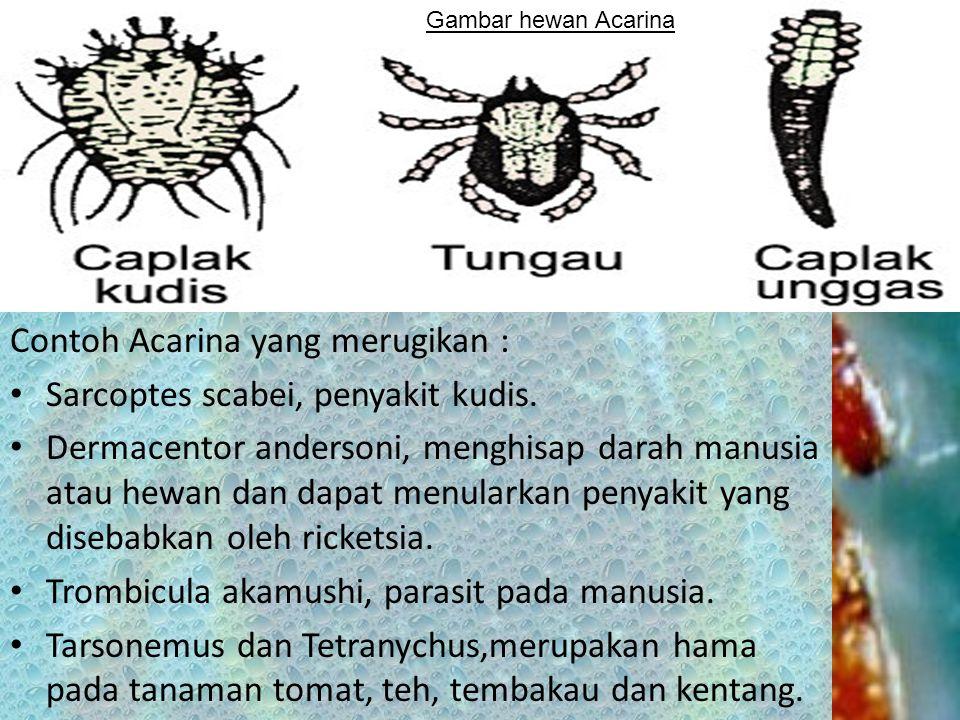 Contoh Acarina yang merugikan : Sarcoptes scabei, penyakit kudis.