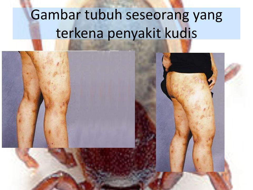 Gambar tubuh seseorang yang terkena penyakit kudis
