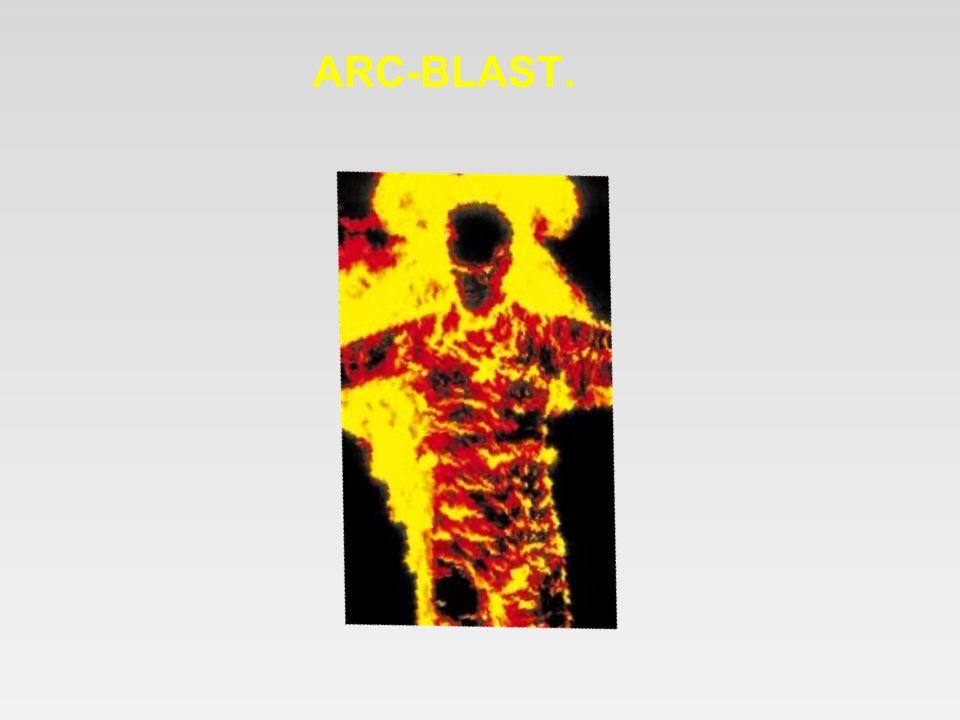 ARC-BLAST.