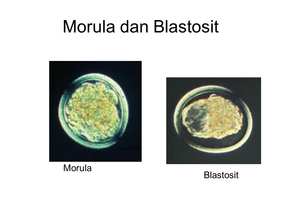 Morula dan Blastosit Morula Blastosit