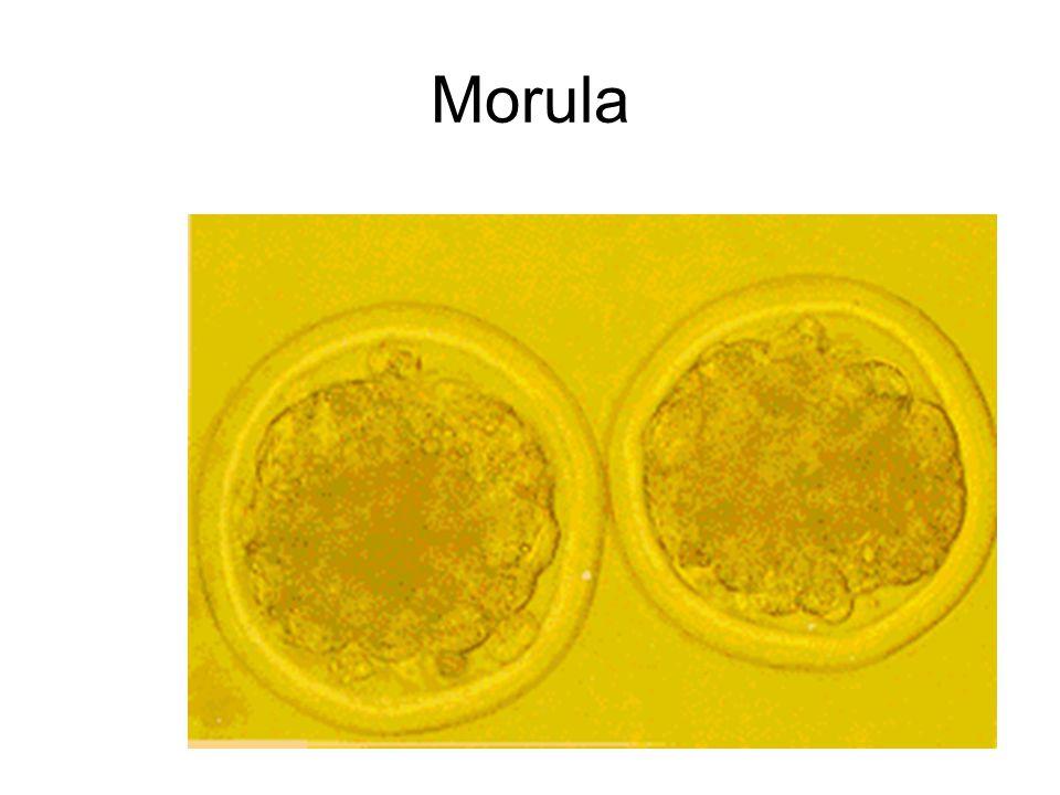 Morula