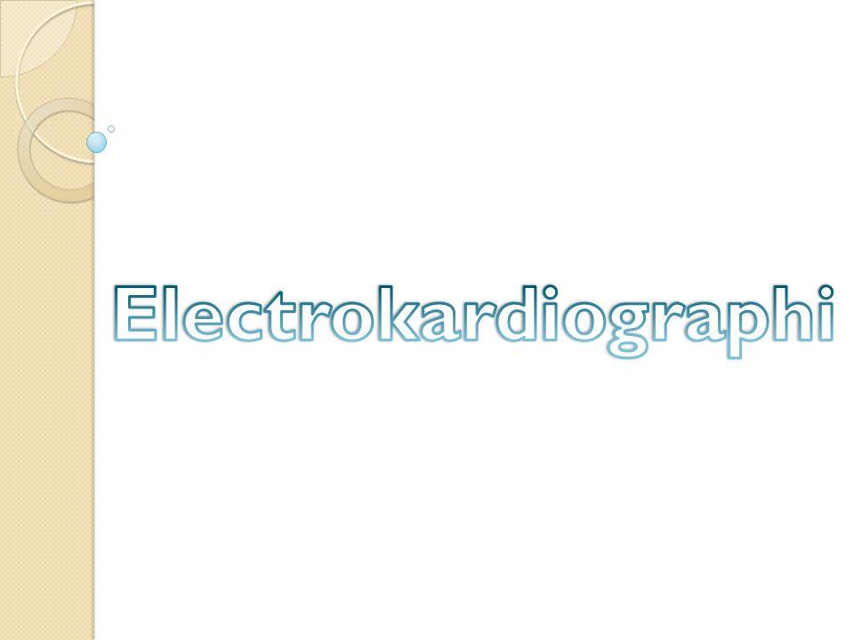 Electrokardiographi