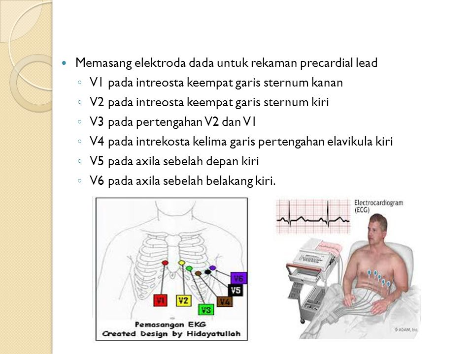Memasang elektroda dada untuk rekaman precardial lead