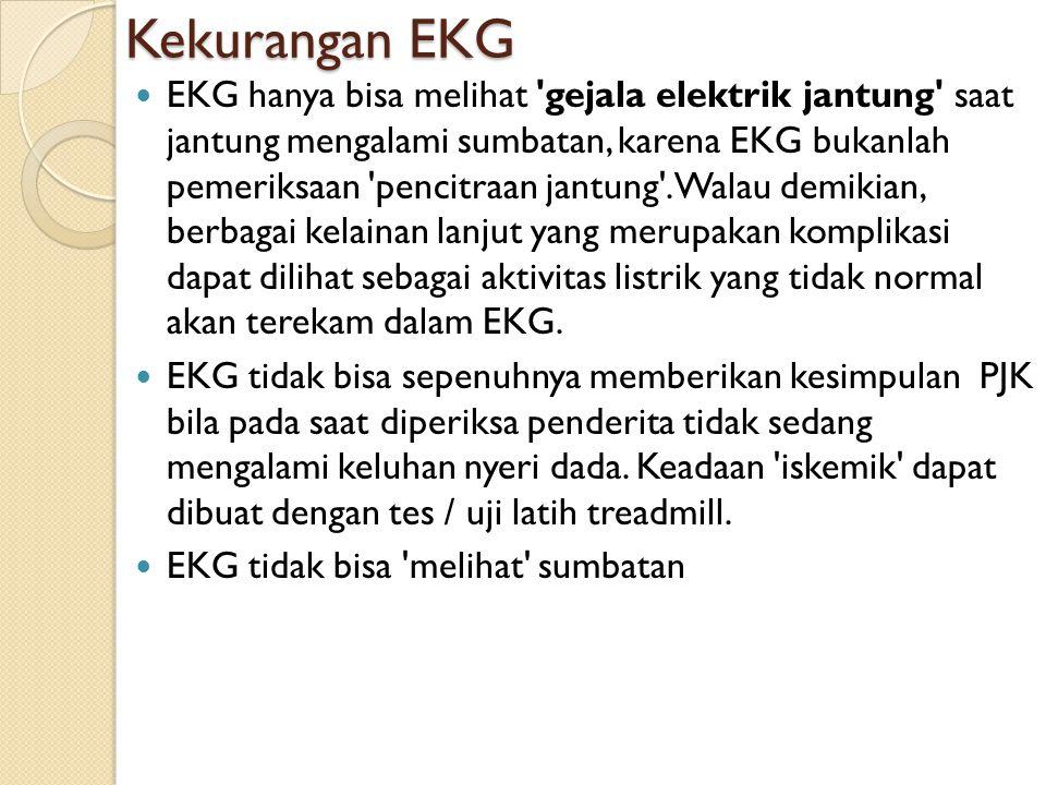 Kekurangan EKG