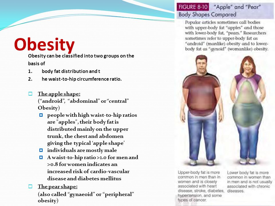 Obesity Obesity can be classified into two groups on the basis of