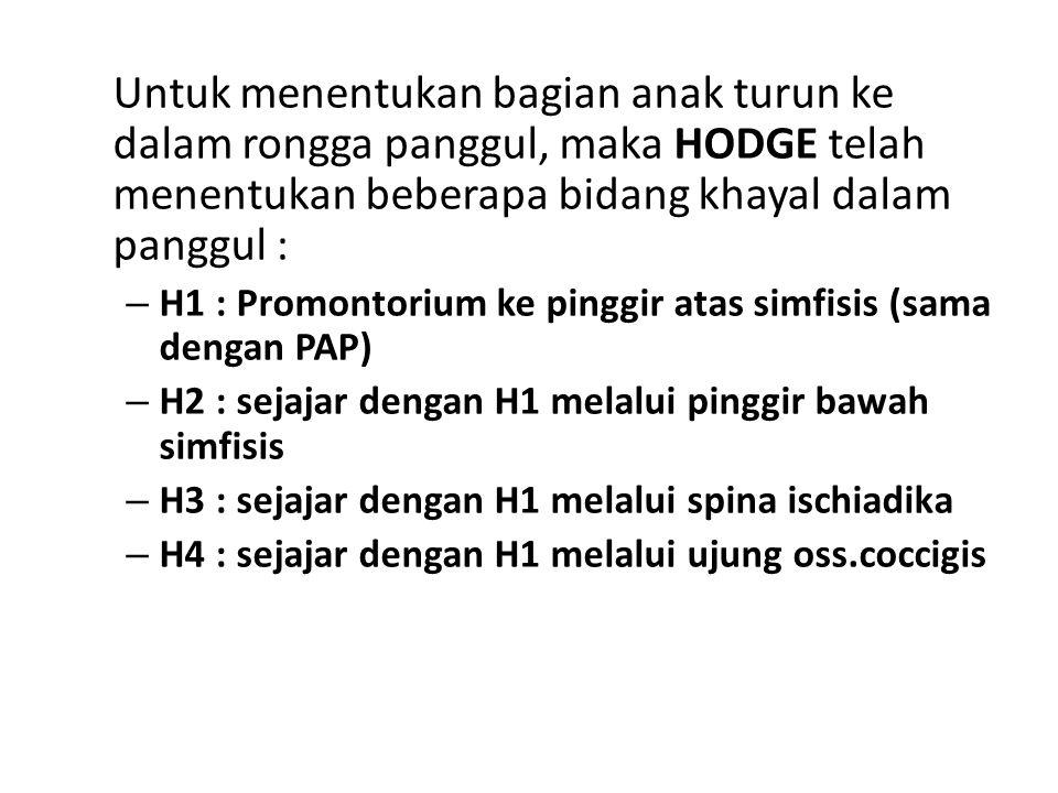 Untuk menentukan bagian anak turun ke dalam rongga panggul, maka HODGE telah menentukan beberapa bidang khayal dalam panggul :