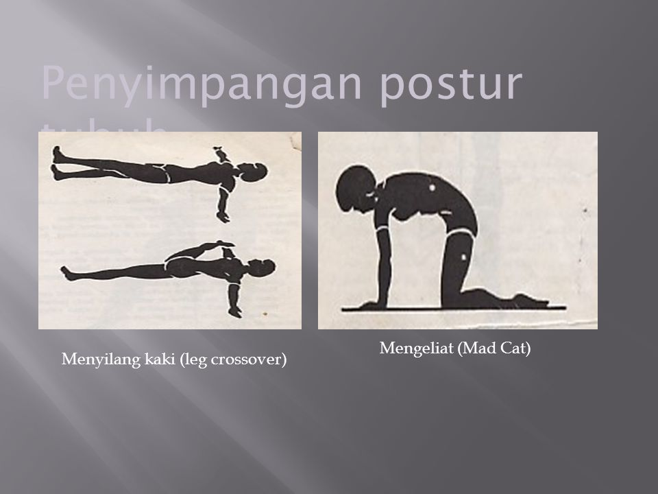 Penyimpangan postur tubuh