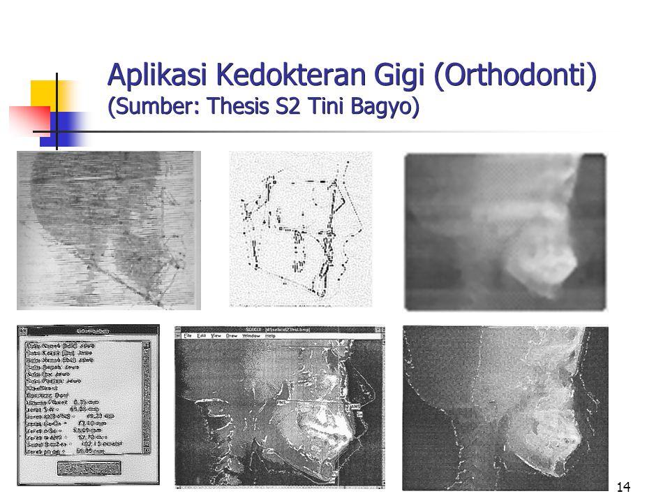 Aplikasi Kedokteran Gigi (Orthodonti) (Sumber: Thesis S2 Tini Bagyo)
