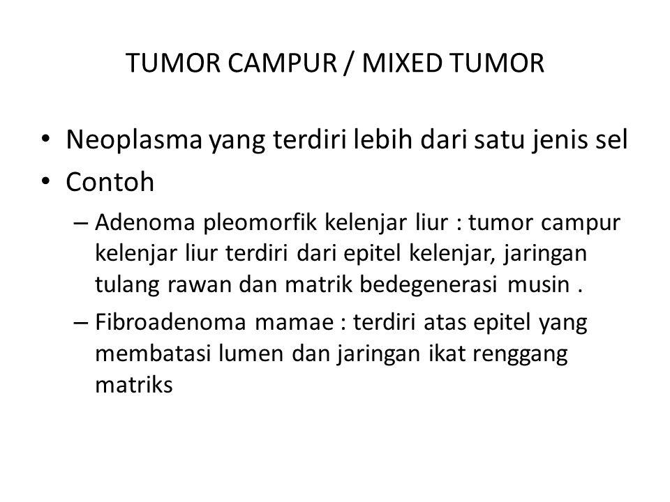TUMOR CAMPUR / MIXED TUMOR